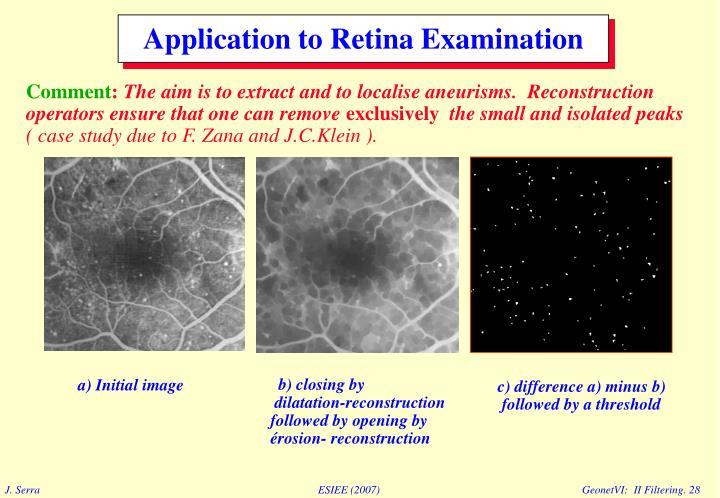 Application to Retina Examination