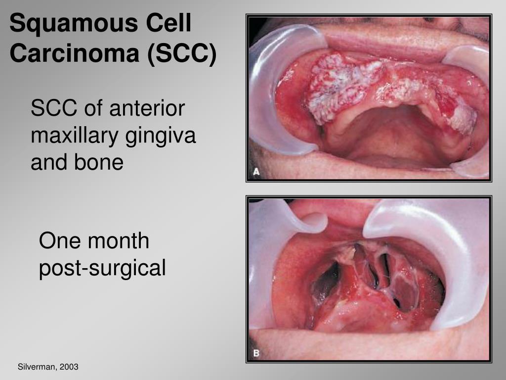 Squamous Cell Carcinoma (SCC)