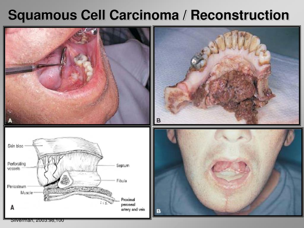 Squamous Cell Carcinoma / Reconstruction