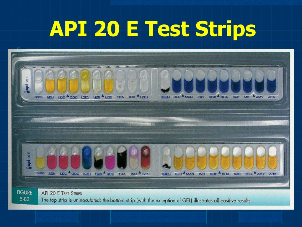 API 20 E Test Strips