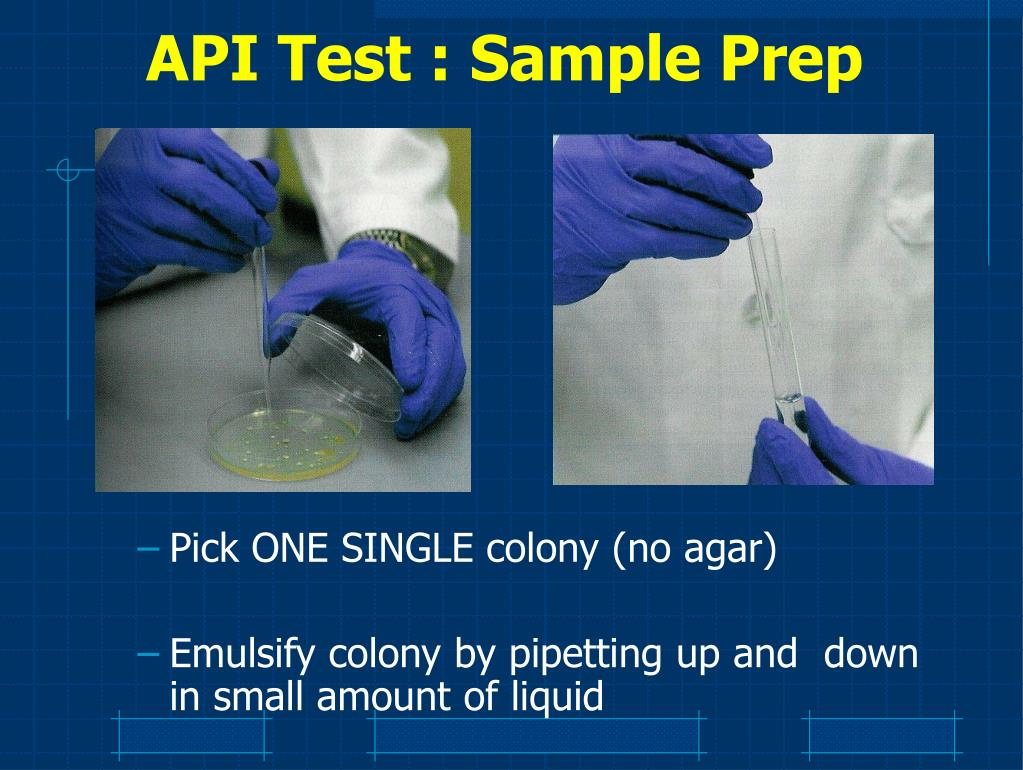 API Test : Sample Prep