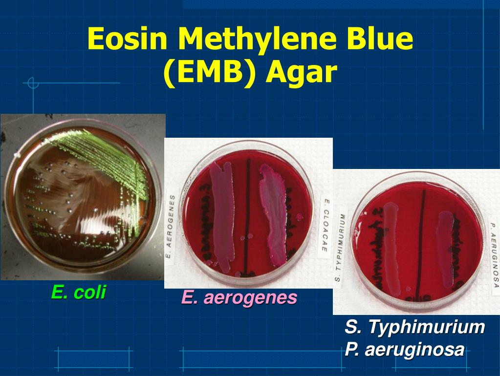 Eosin Methylene Blue (EMB) Agar