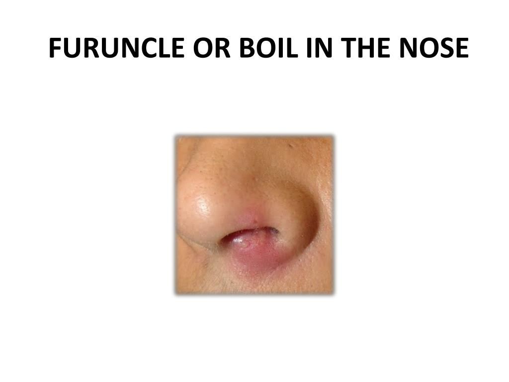 FURUNCLE OR BOIL IN THE NOSE