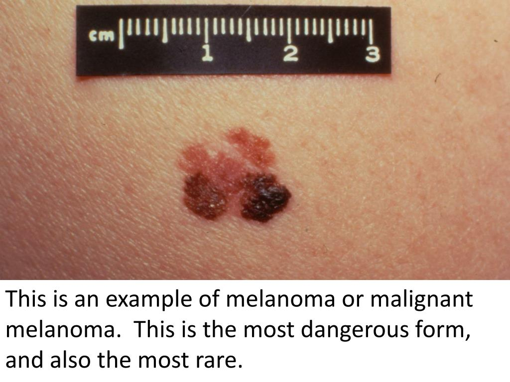 This is an example of melanoma or malignant melanoma.  This is the most dangerous form, and also the most rare.