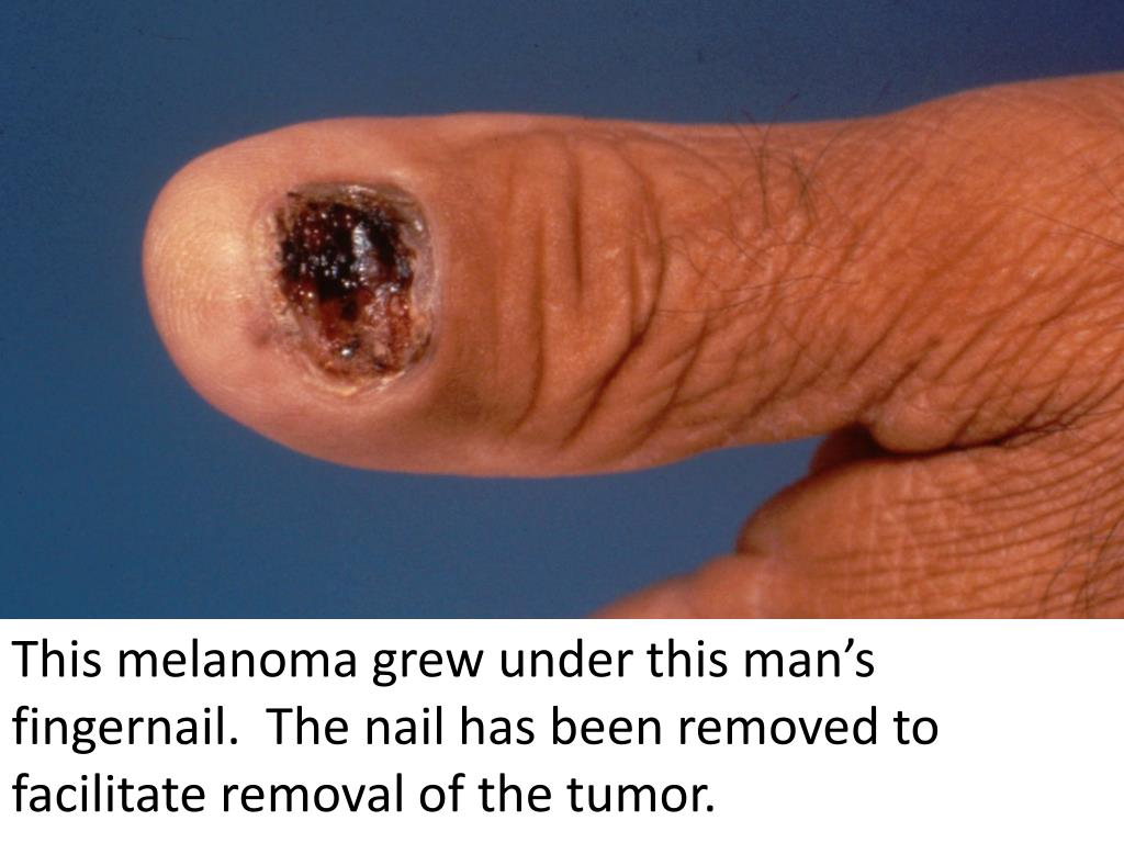 This melanoma grew under this man's fingernail.  The nail has been removed to facilitate removal of the tumor.