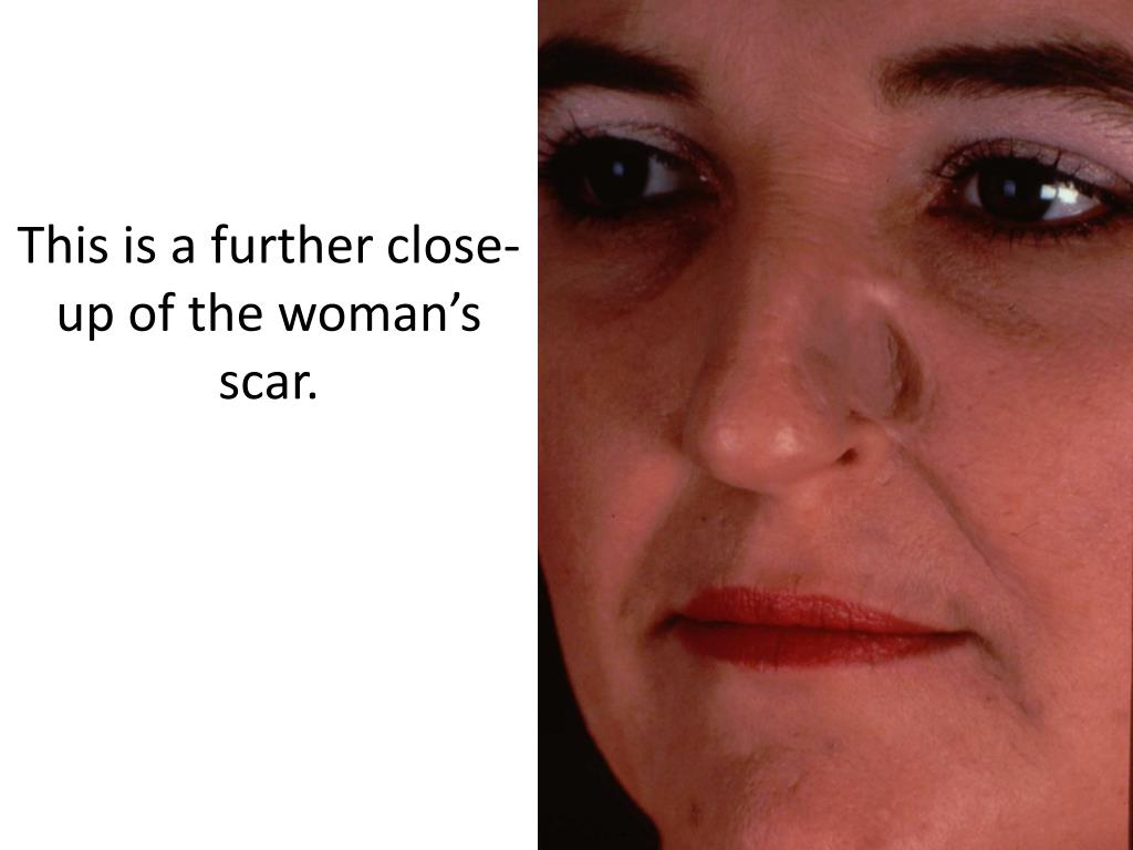 This is a further close-up of the woman's scar.