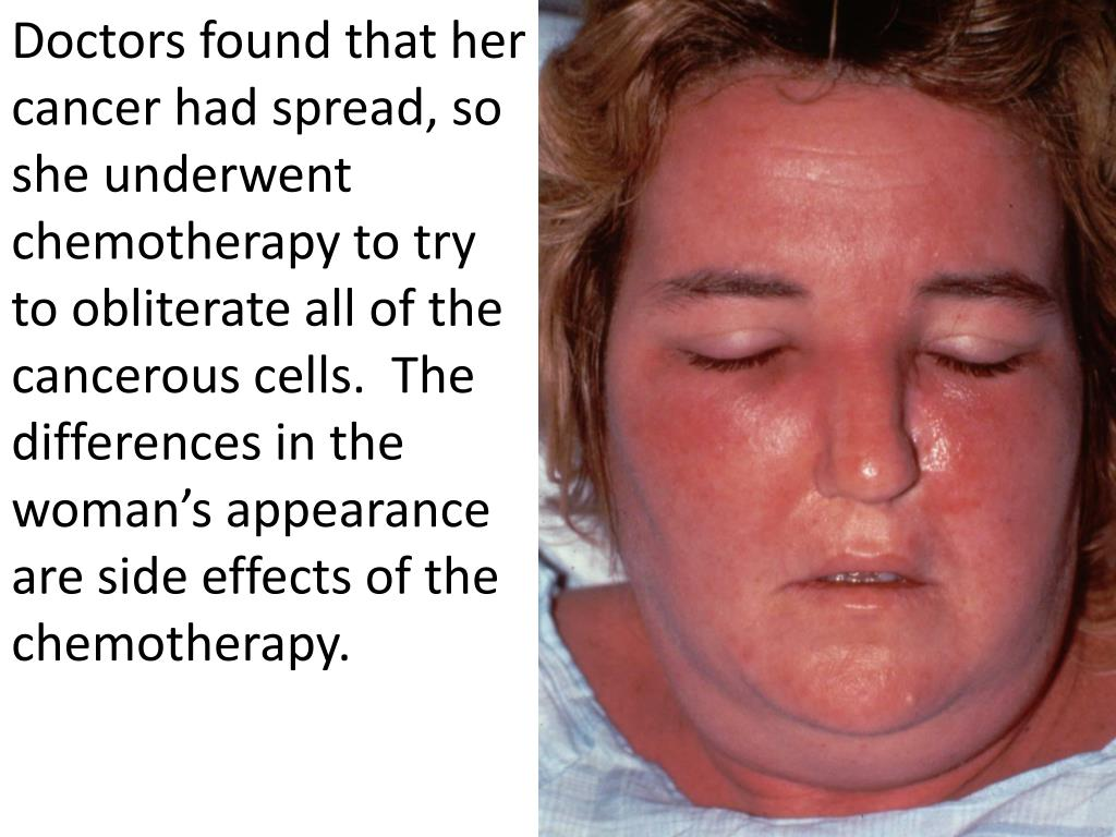 Doctors found that her cancer had spread, so she underwent chemotherapy to try to obliterate all of the cancerous cells.  The differences in the woman's appearance are side effects of the chemotherapy.