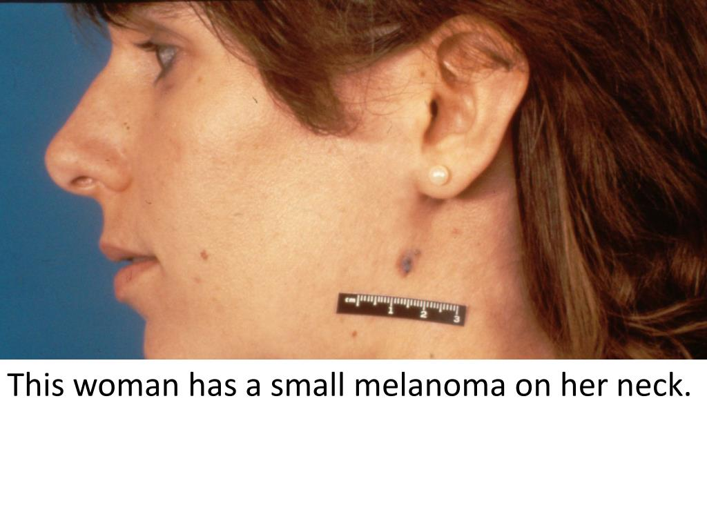 This woman has a small melanoma on her neck.