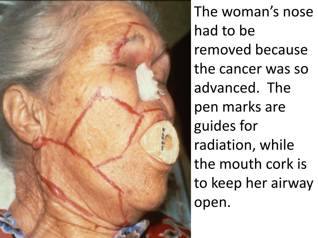 The woman's nose had to be removed because the cancer was so advanced.  The pen marks are guides for radiation, while the mouth cork is to keep her airway open.