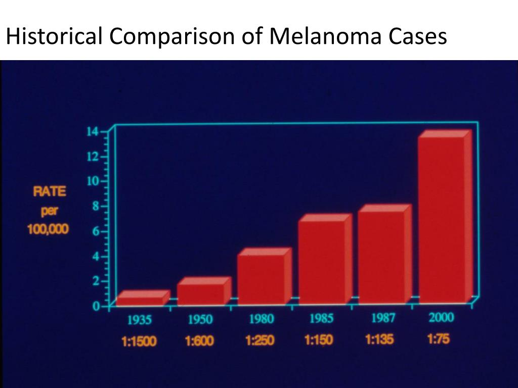 Historical Comparison of Melanoma Cases