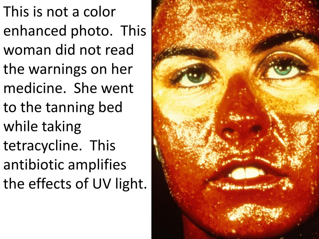 This is not a color enhanced photo.  This woman did not read the warnings on her medicine.  She went to the tanning bed while taking tetracycline.  This antibiotic amplifies the effects of UV light.
