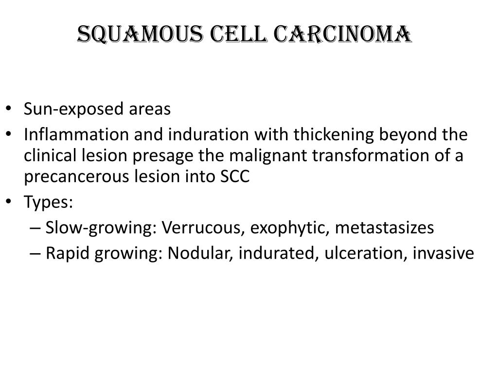Squamous