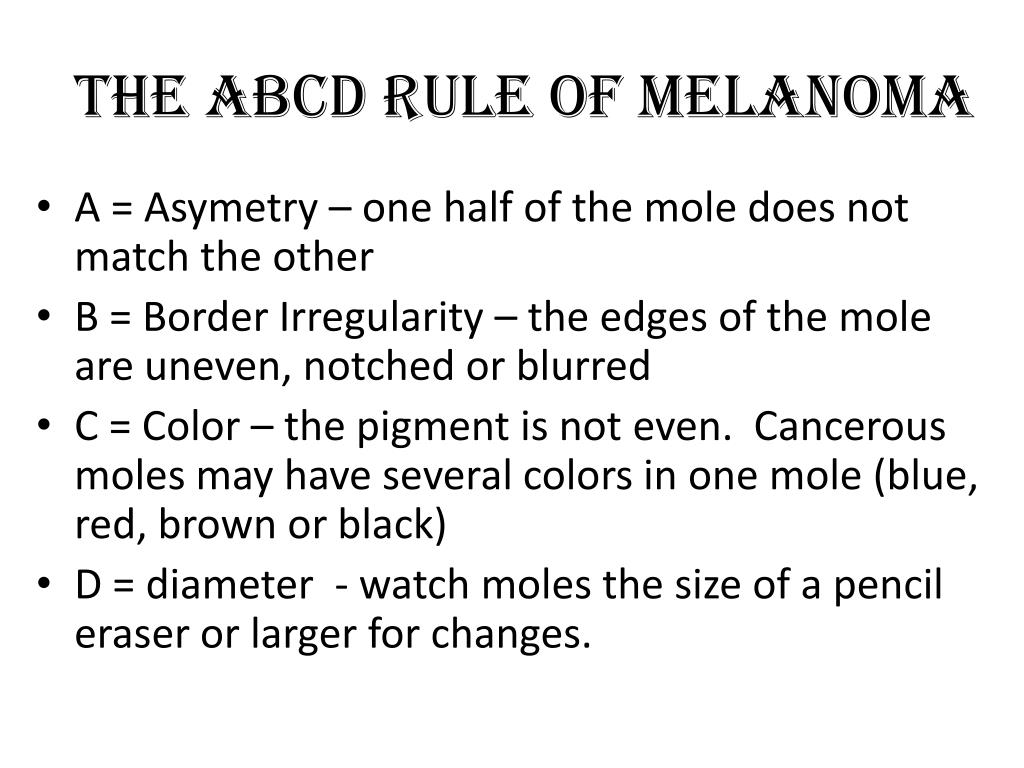 The ABCD Rule of Melanoma