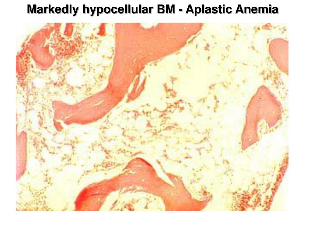 Markedly hypocellular BM - Aplastic Anemia