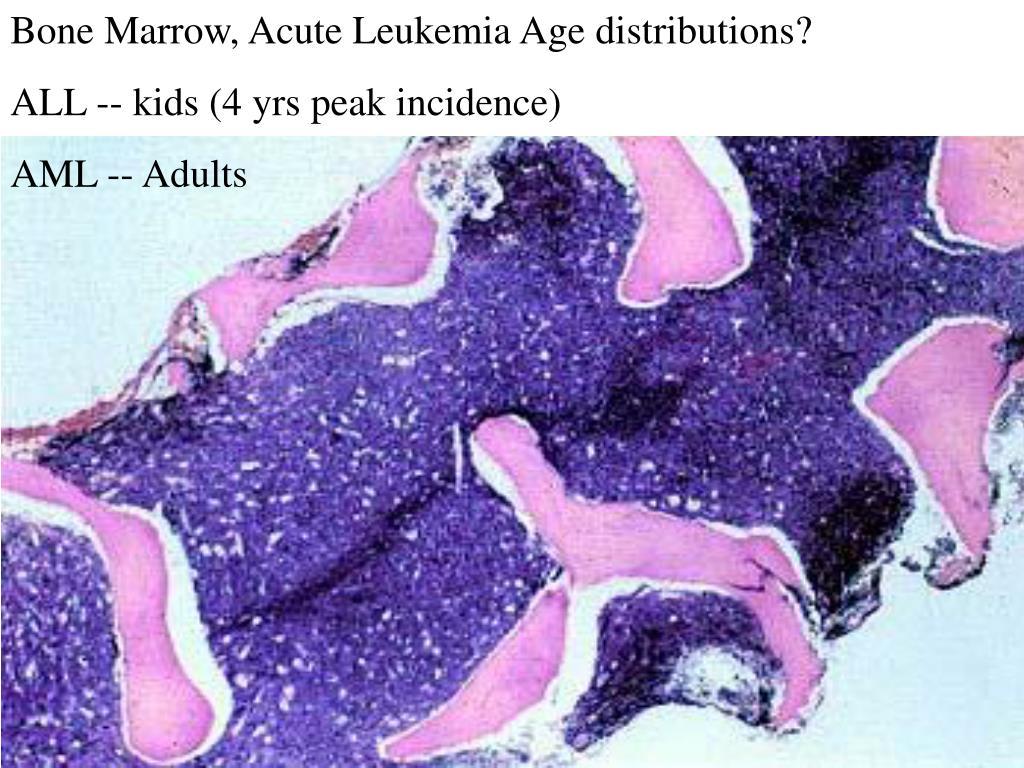 Bone Marrow, Acute Leukemia Age distributions?