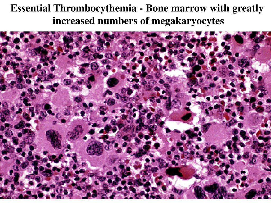 Essential Thrombocythemia - Bone marrow with greatly