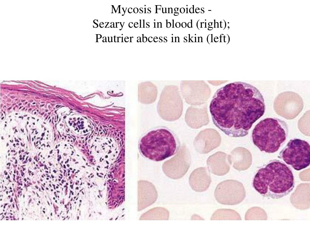 Mycosis Fungoides -