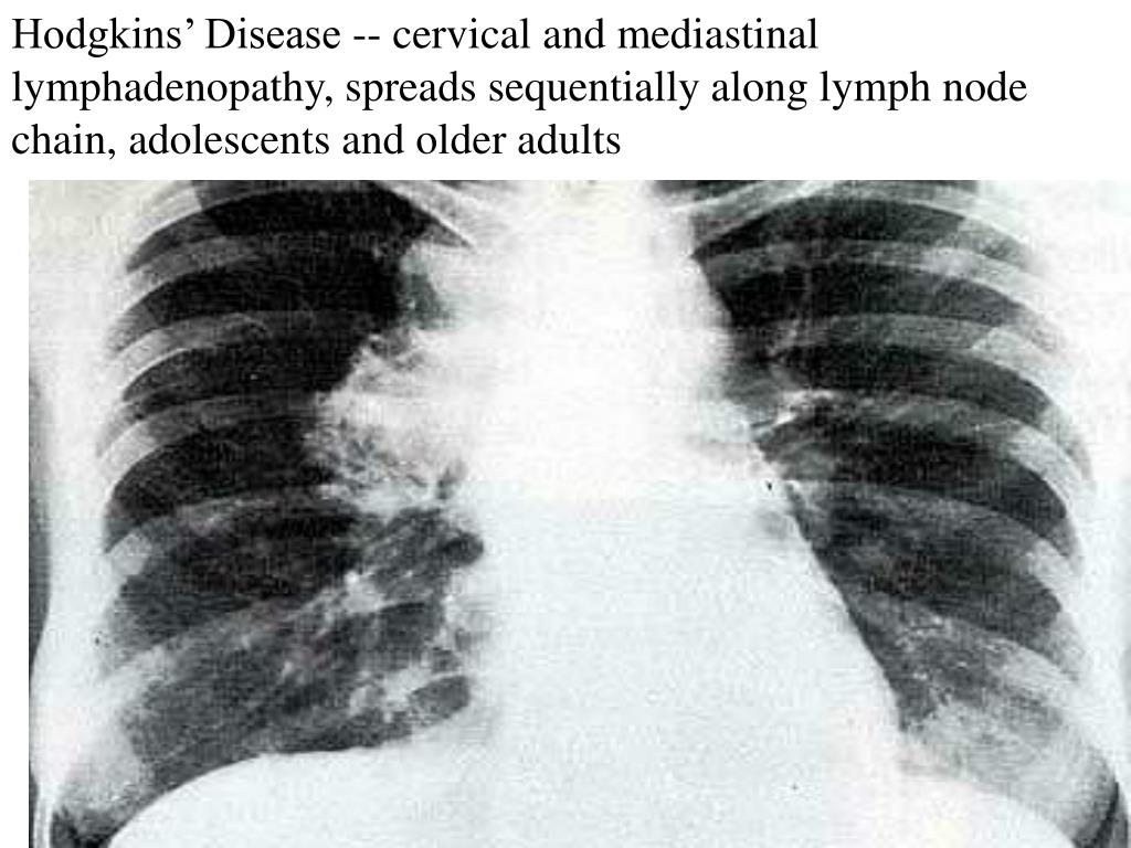 Hodgkins' Disease -- cervical and mediastinal lymphadenopathy, spreads sequentially along lymph node chain, adolescents and older adults