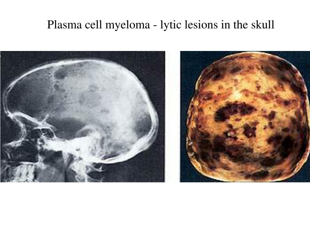 Plasma cell myeloma - lytic lesions in the skull