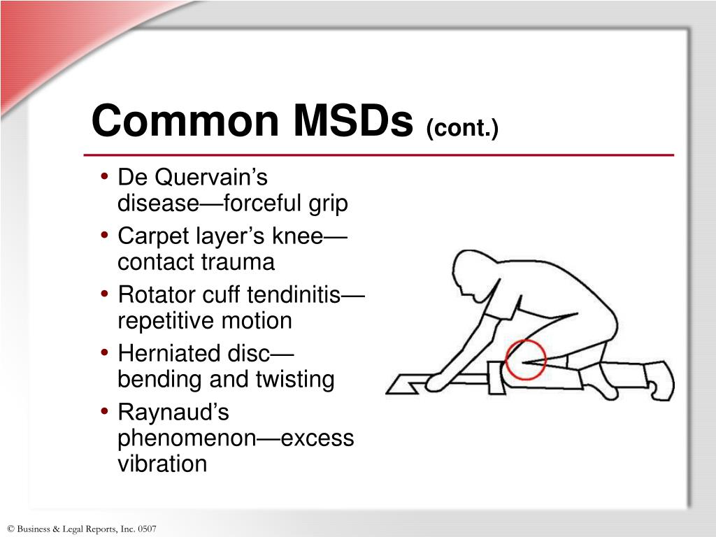 Common MSDs