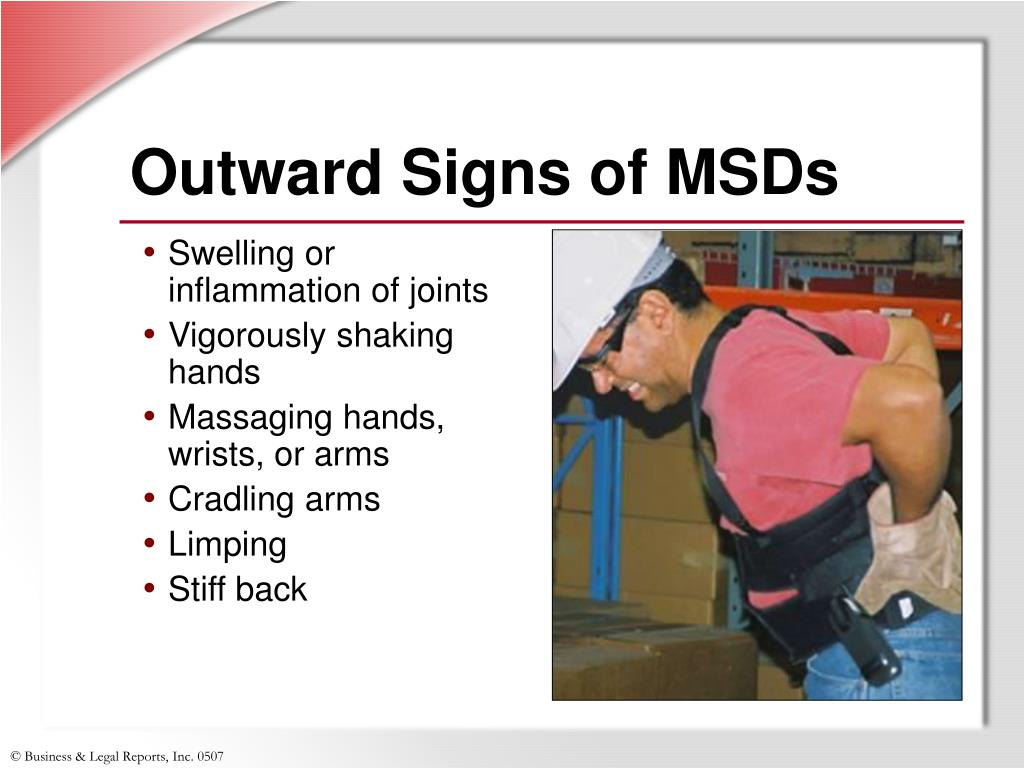 Outward Signs of MSDs