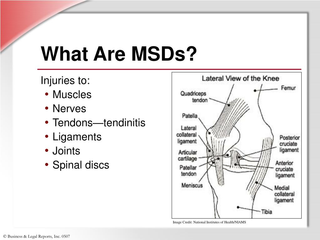 What Are MSDs?