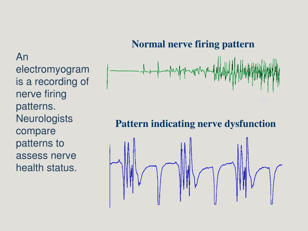 Normal nerve firing pattern
