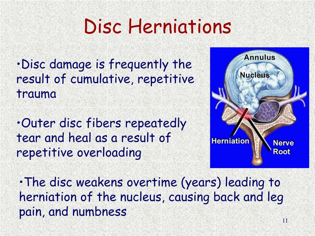 Disc Herniations