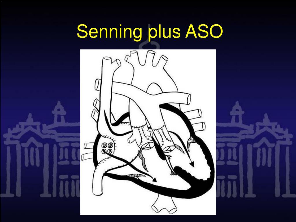 Senning