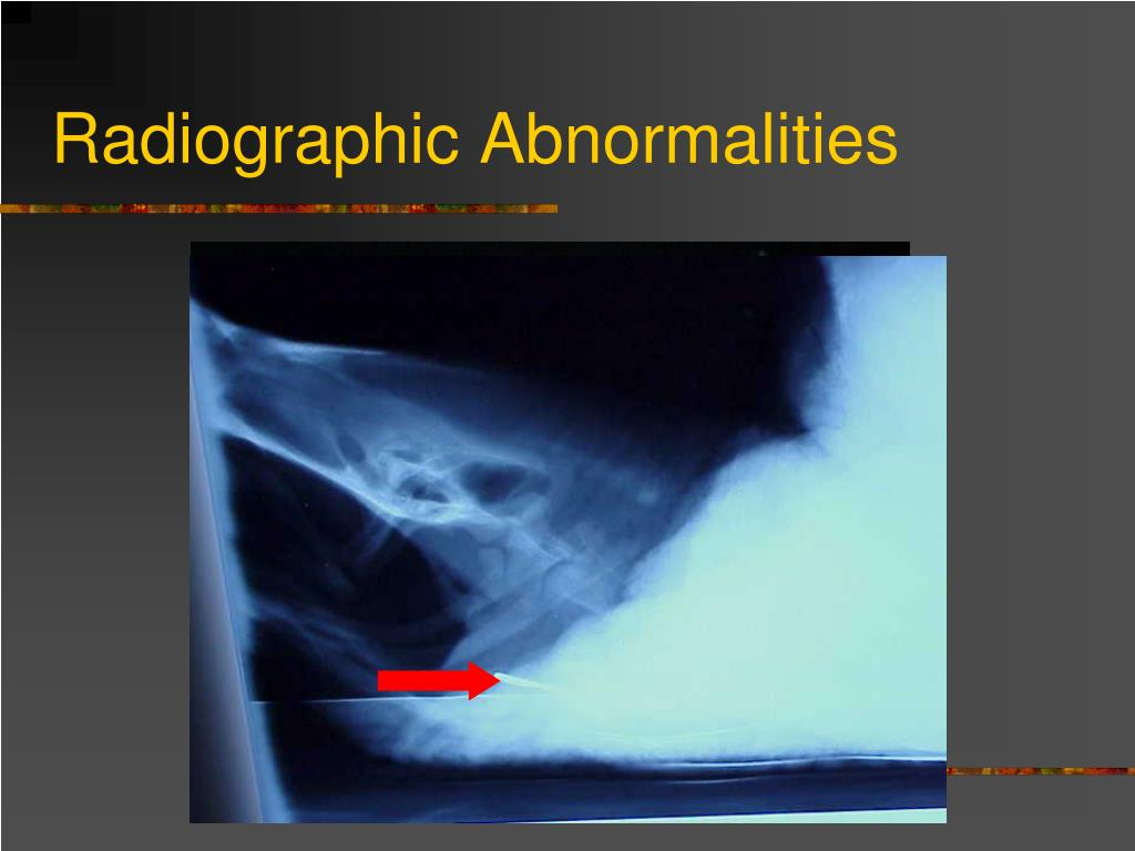 Radiographic Abnormalities