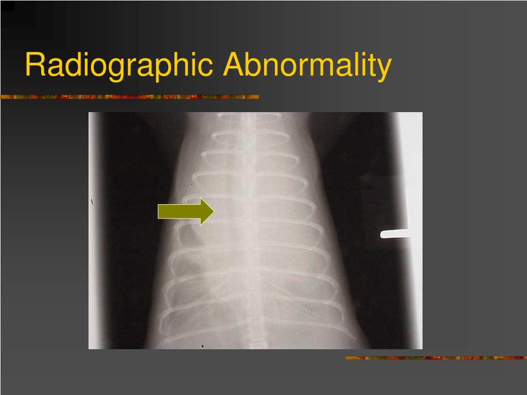 Radiographic Abnormality