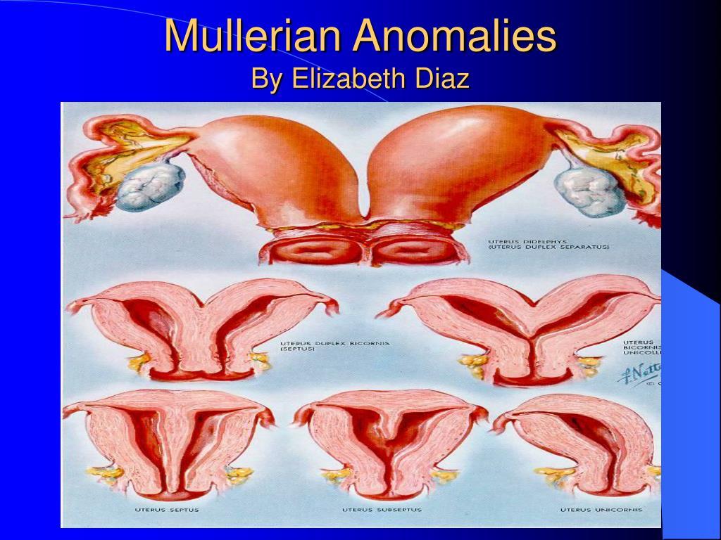 mullerian anomalies by elizabeth diaz