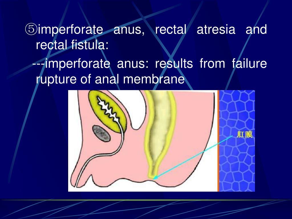 ⑤imperforate anus, rectal atresia and rectal fistula: