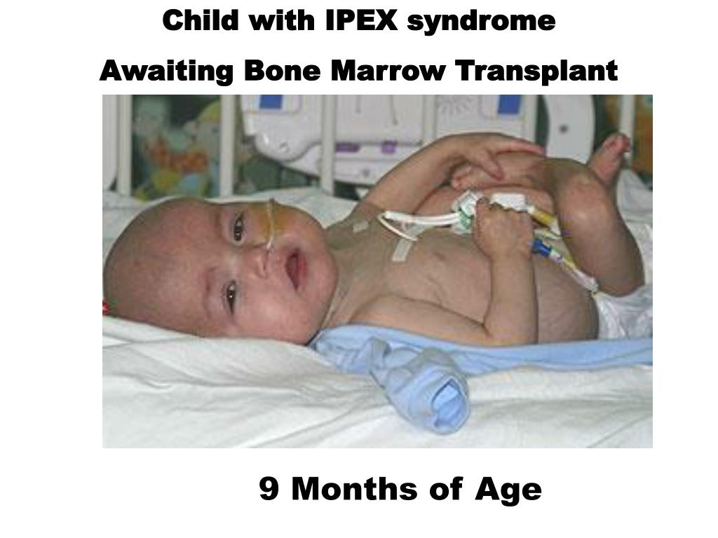 Child with IPEX syndrome