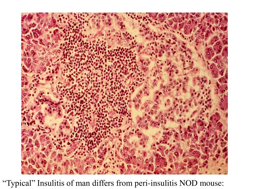 """Typical"" Insulitis of man differs from peri-insulitis NOD mouse: Bottazzo"