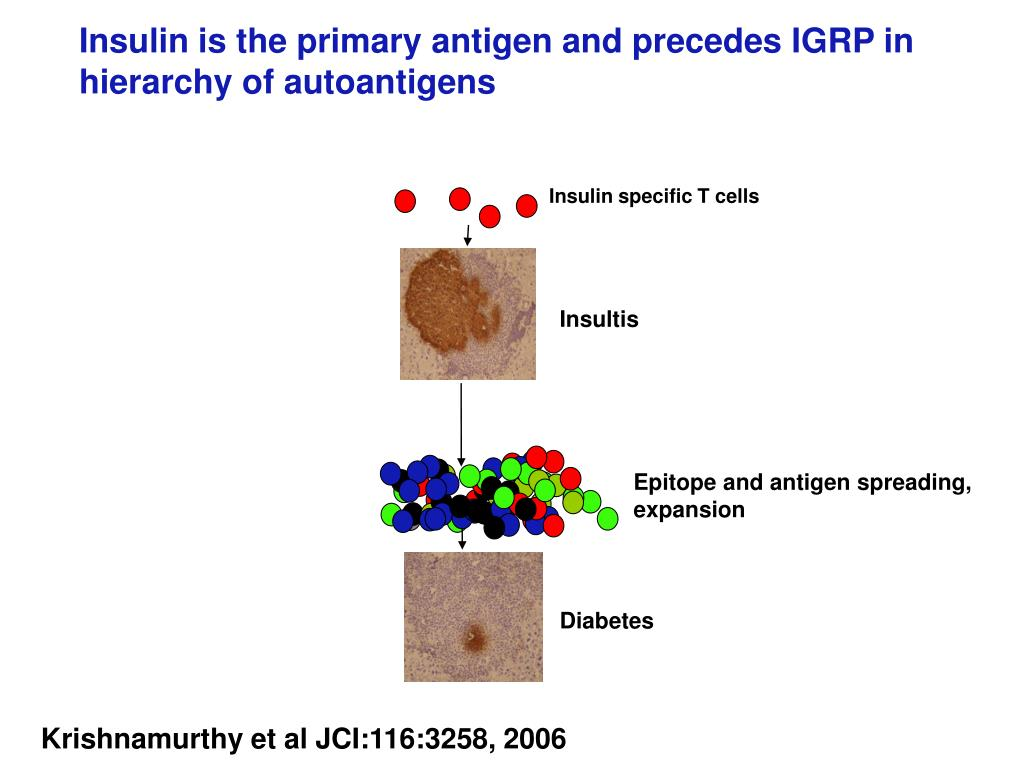 Insulin specific T cells