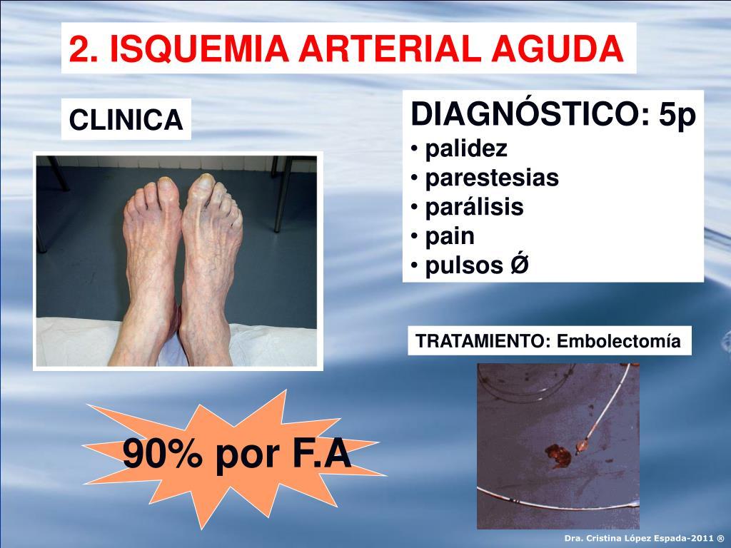 2. ISQUEMIA ARTERIAL AGUDA