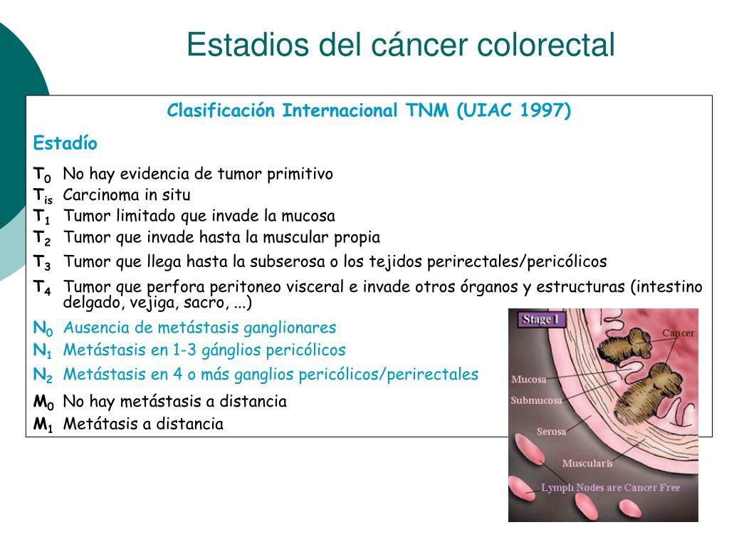 Estadios del cáncer colorectal
