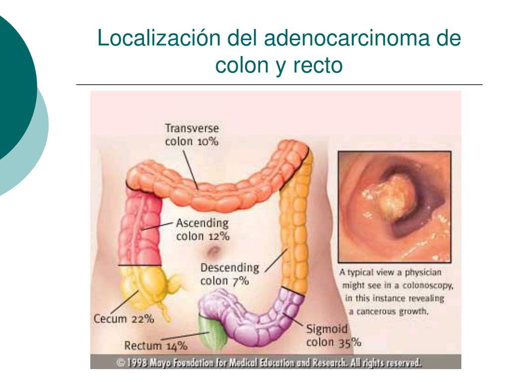 Localización del adenocarcinoma de colon y recto
