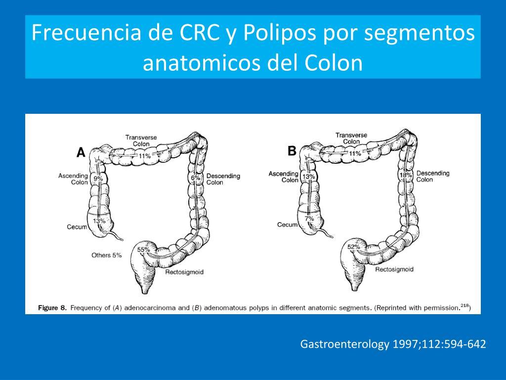 Frecuencia de CRC y Polipos por segmentos anatomicos del Colon