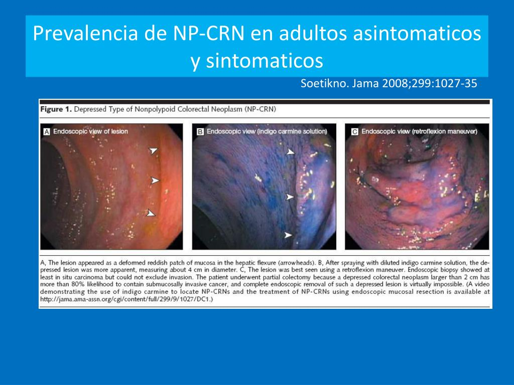 Prevalencia de NP-CRN en adultos asintomaticos y sintomaticos