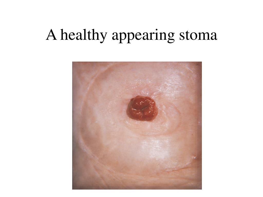 A healthy appearing stoma