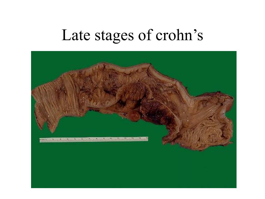 Late stages of crohn's