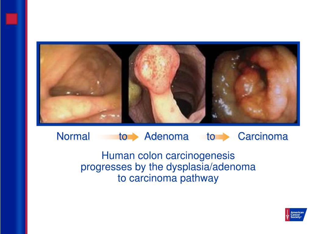 Normal  toAdenomatoCarcinoma