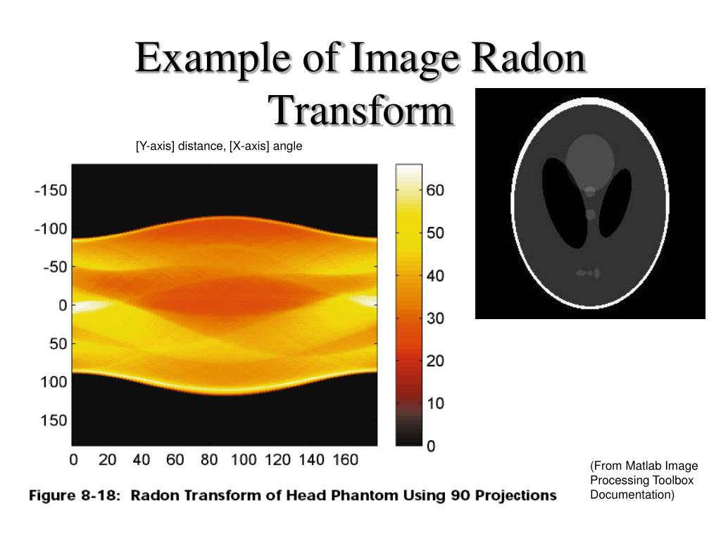 Example of Image Radon Transform