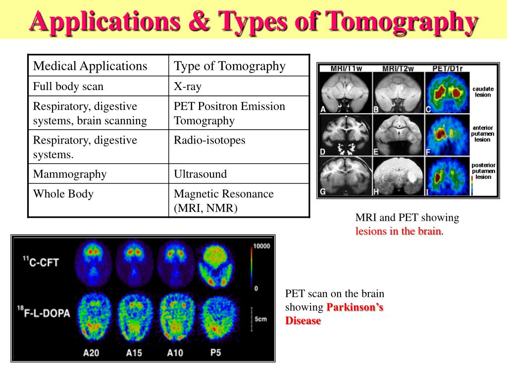 Applications & Types of Tomography