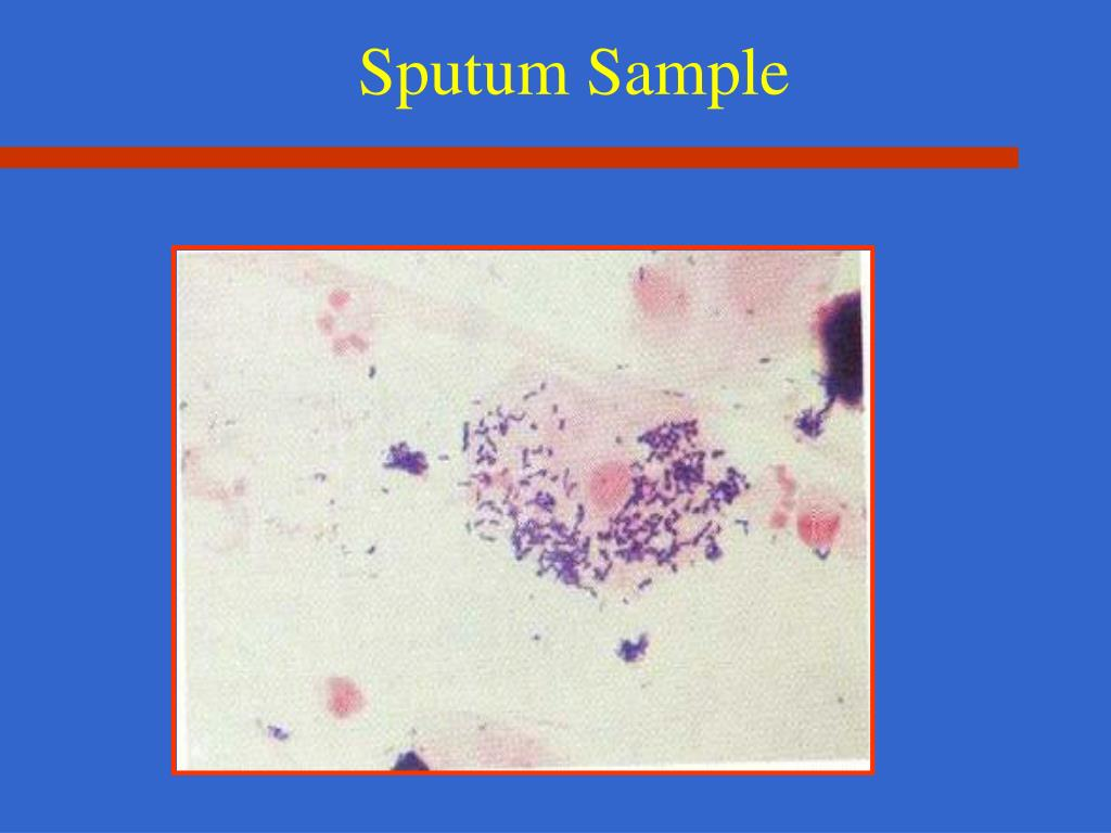 Sputum Sample