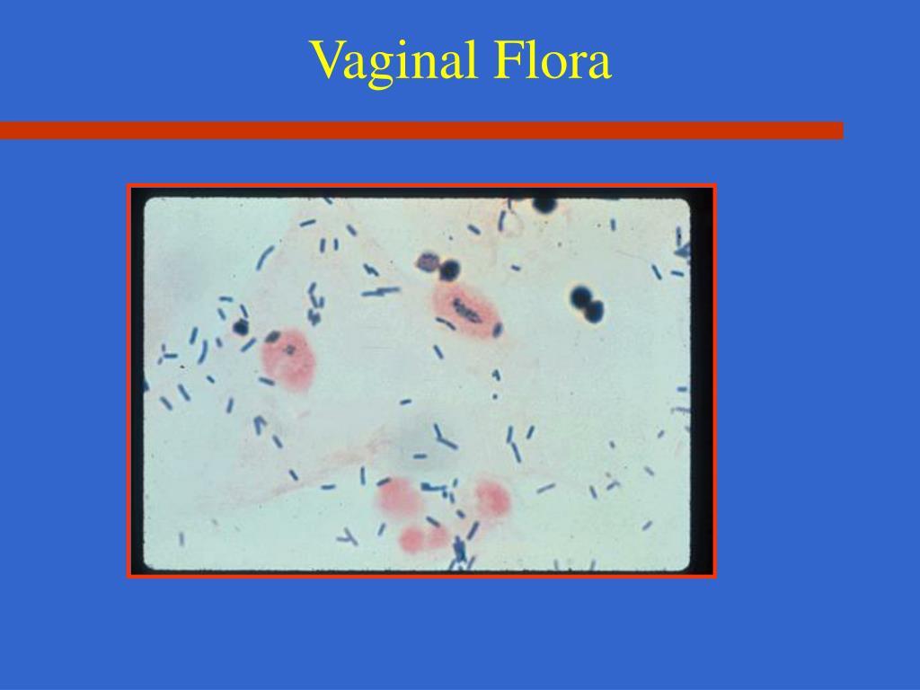 Vaginal Flora