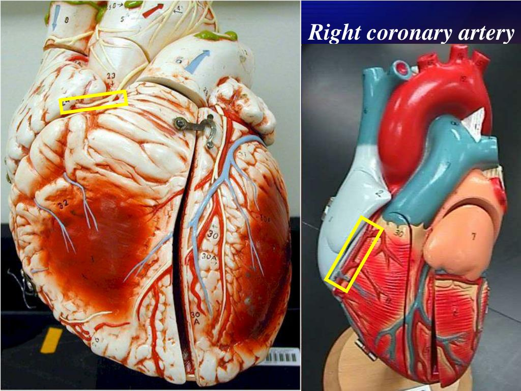 Right coronary artery