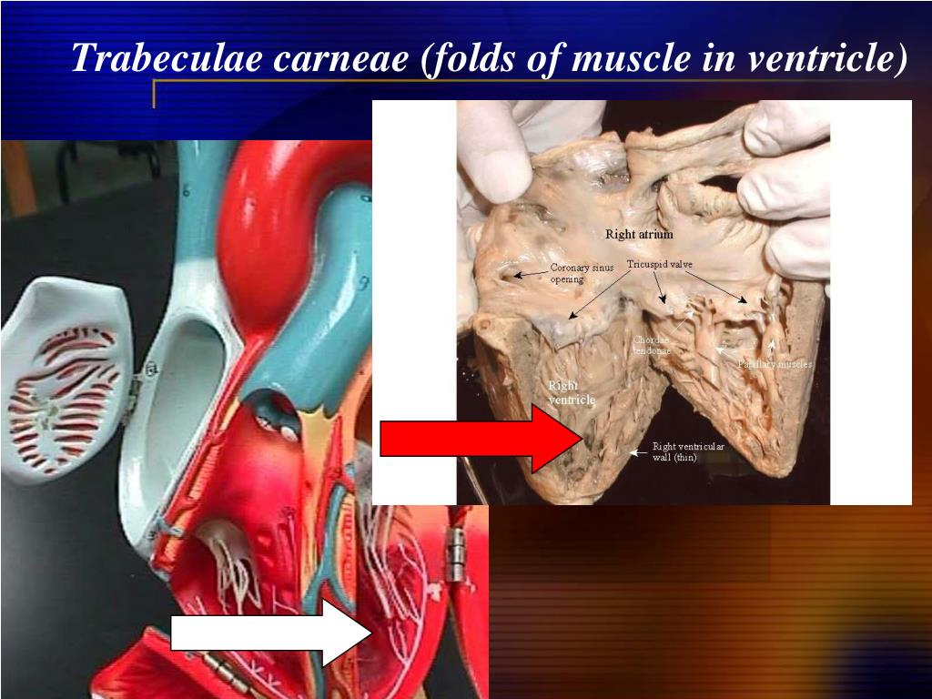 Trabeculae carneae (folds of muscle in ventricle)